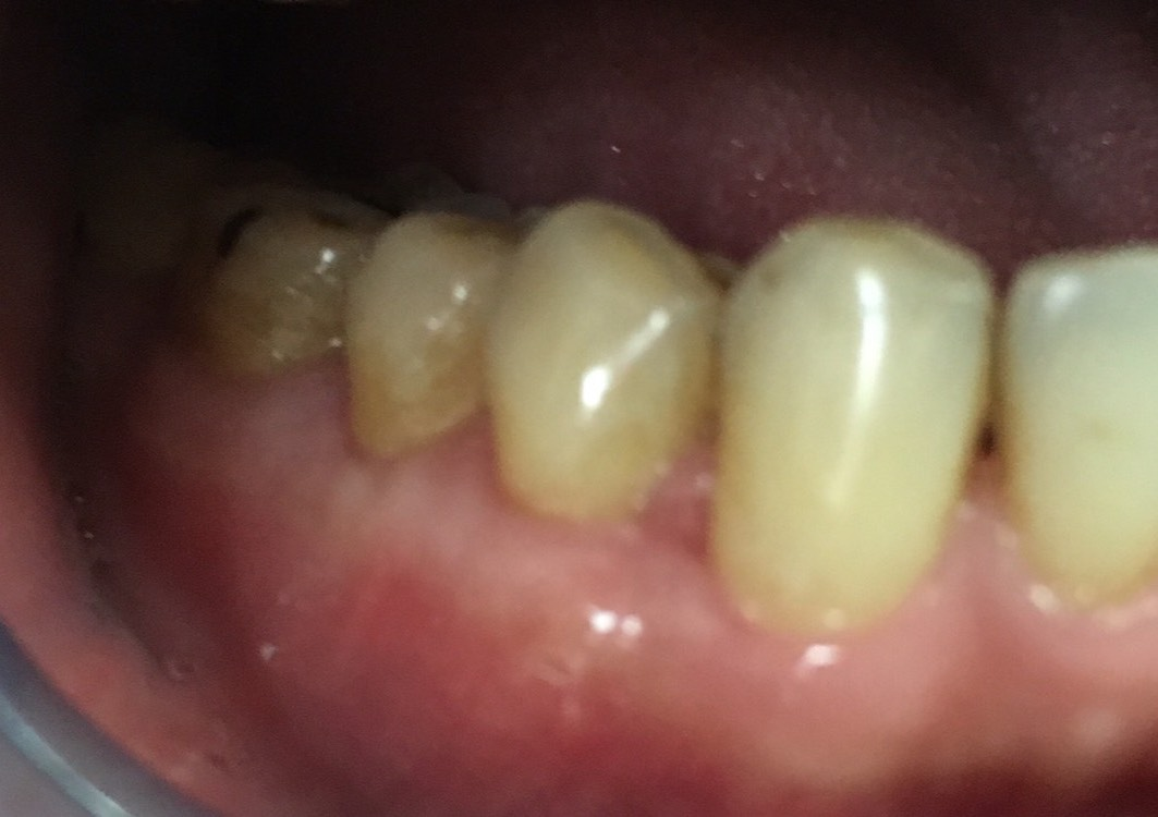 after 1 year tooth