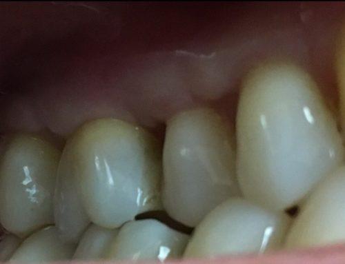 Gum Surgery – Case 3