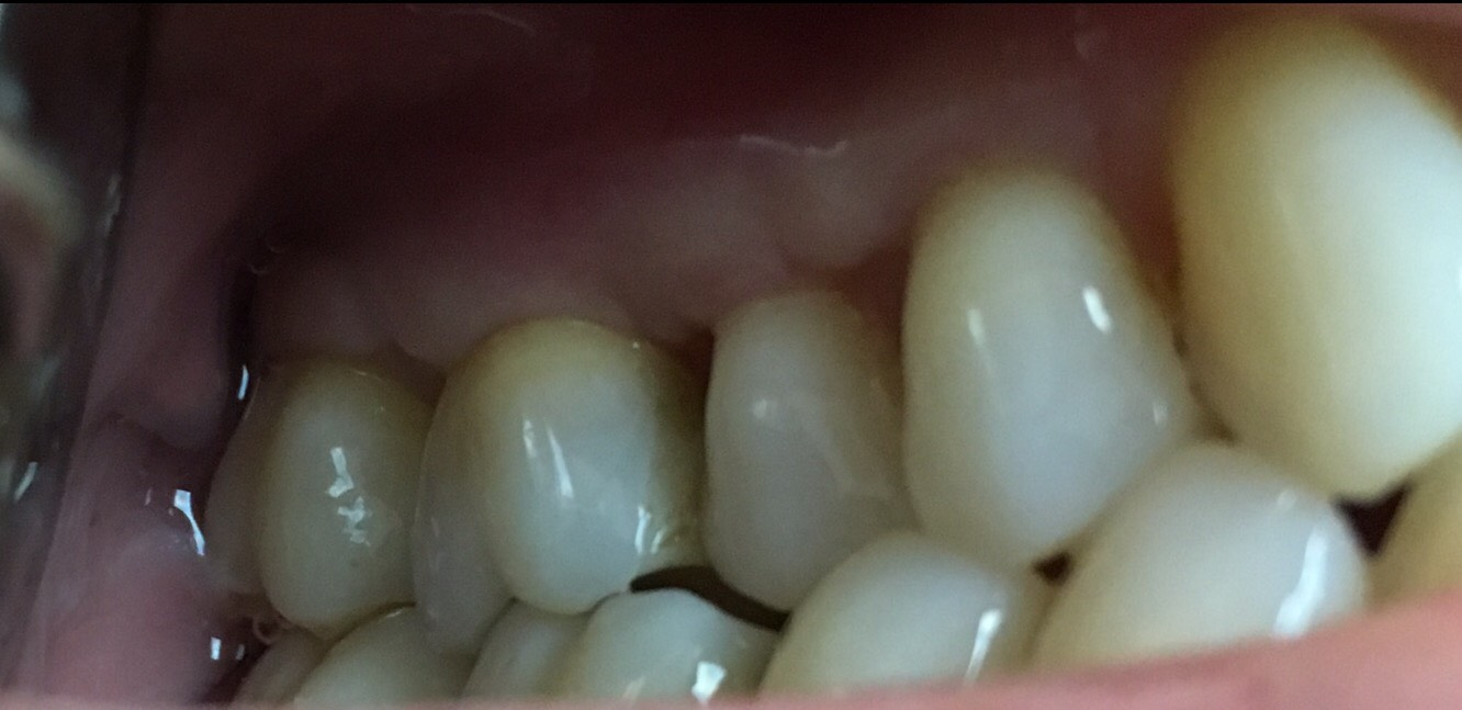 One Year After Gum Graft