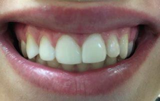 3 teeth veneered in 2 hours