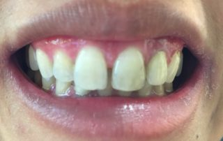 5 Teeth Veneered