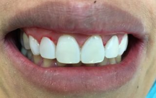 5 Teeth Veneered in 3 Hours