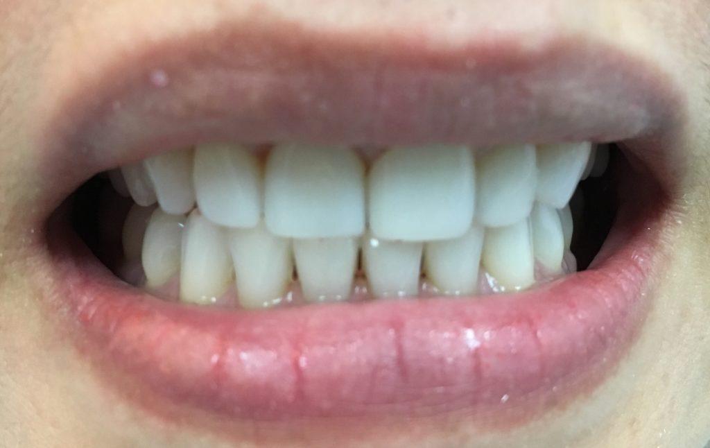 Patient broke her tooth