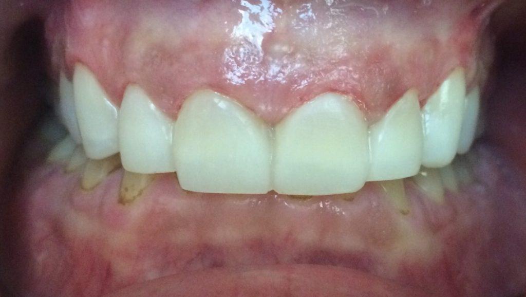 Patient's 8 Teeth