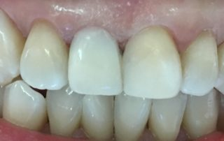 teeth veneers