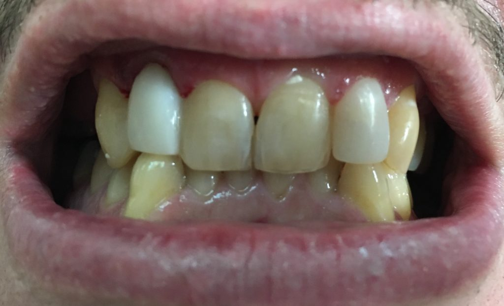 Pontic Tooth