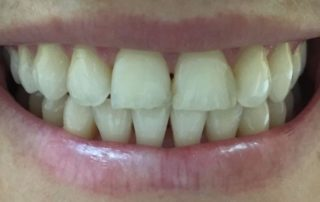 composite fillings in one visit