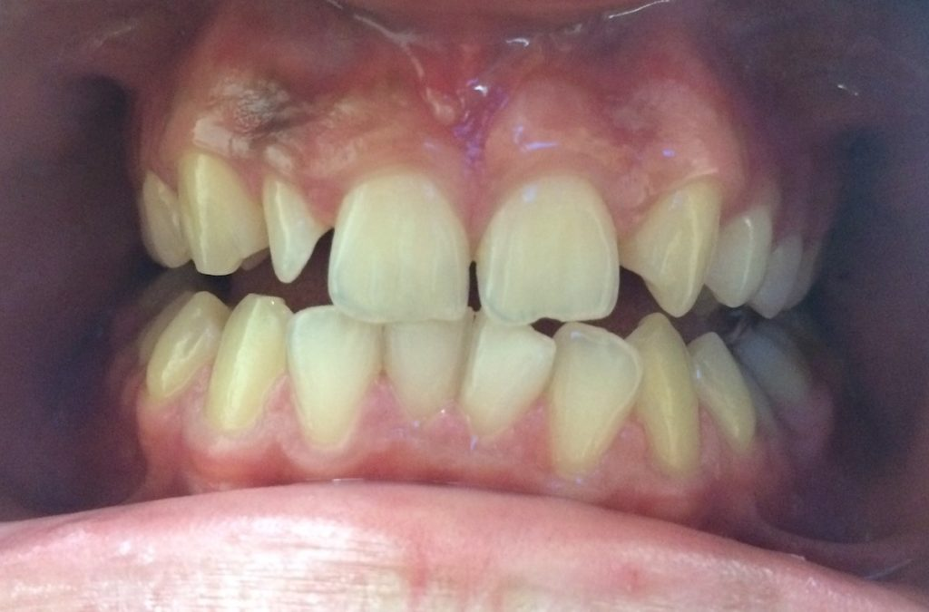Composite fillings in 2 hours