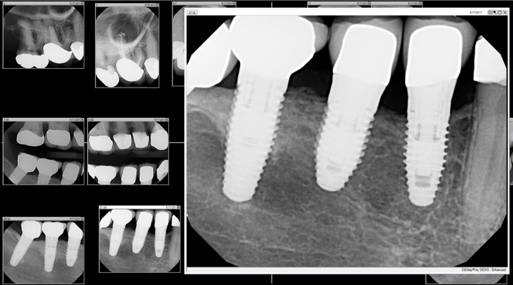 Functioning Implants