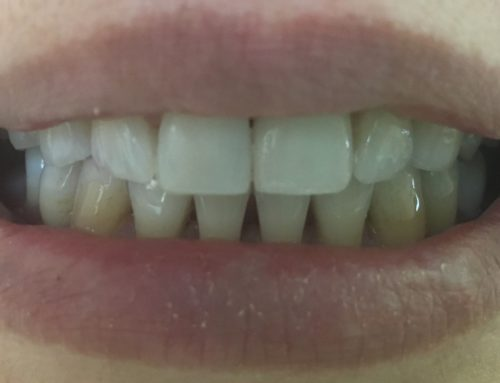 Only One-Visit CAD-CAM CEREC Porcelain Crowns