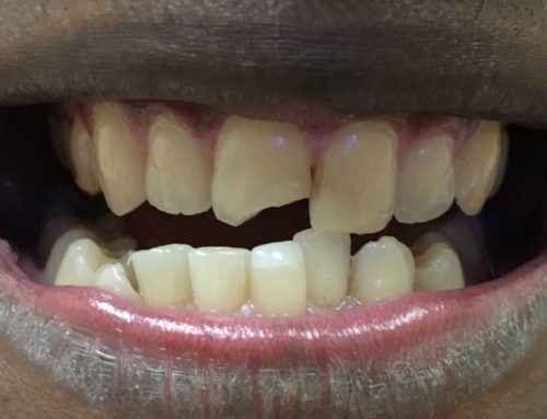 Two Composite Veneers In 2.5 Hours, Same Day