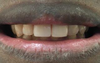 1 Visit Teeth Treatment