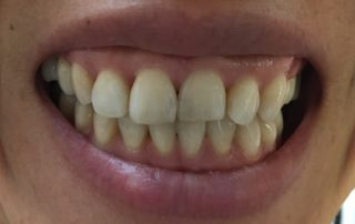 One day composite veneers