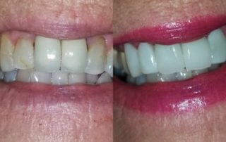 2 CEREC Crowns