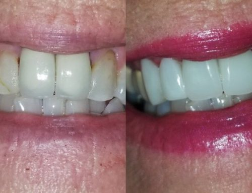 2 CEREC Crowns and 4 Composite Veneers in 1 Visit