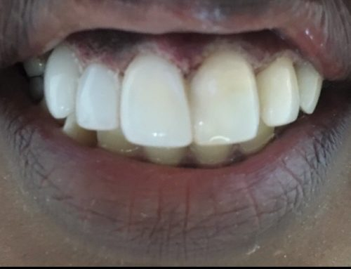 Longer Straight Teeth in One Visit with Affordable Price