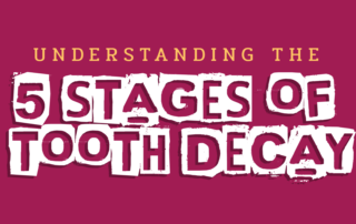 tooth decay stages