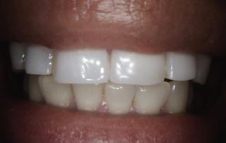 new case of teeth