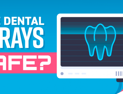 """Are Dental X-Rays Safe?"" and Other Questions about Dental X-Rays"