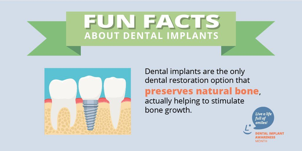 Dental implants fun facts