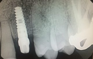 dental implant tooth xray