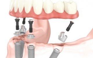 many implants