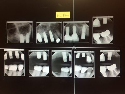 implant for me xray