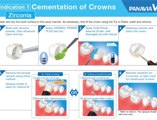Zirconia Cement for Zirconia Crowns & Bridges Long Term Survival-Panavia V5
